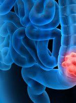 علائم هشداردهنده سرطان روده بزرگ کدامند؟